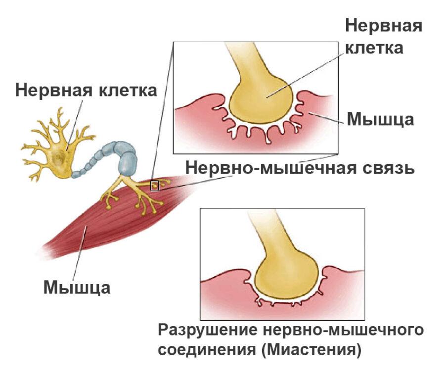 Миастения причины и симптомы