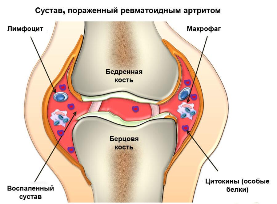 ревматоидный артрит патогенез