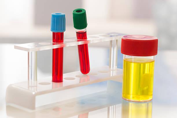 анализы крови и мочи при назначении НПВС