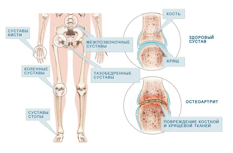 остеоартрит симптомы
