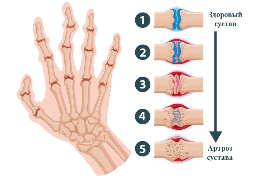 ревматоидный артрит стадии