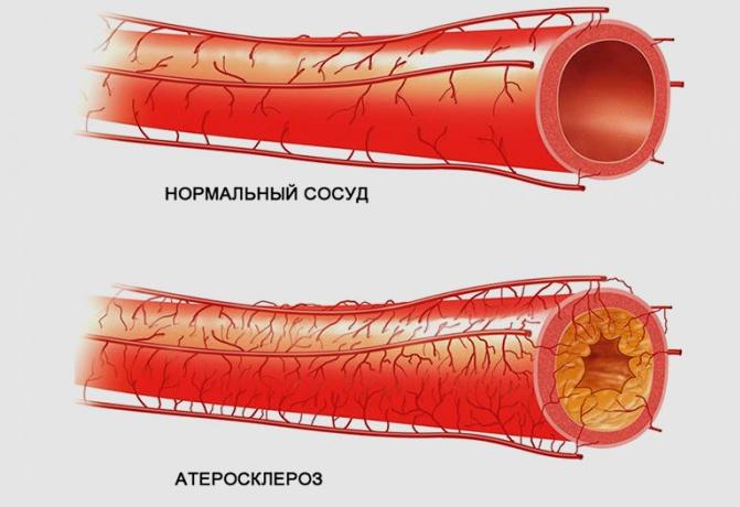 Атеросклероз патогенез