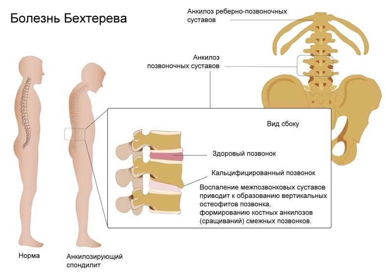 Болезнь Бехтерева симптомы