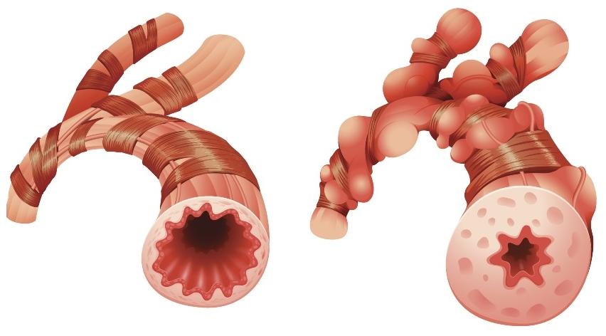 приступ бронхиальной астмы что с легкими
