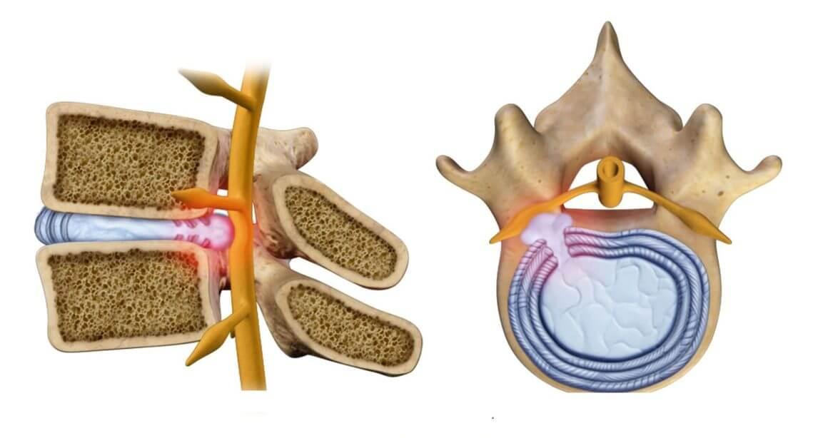 Грыжа межпозвоночного диска причины и симптомы
