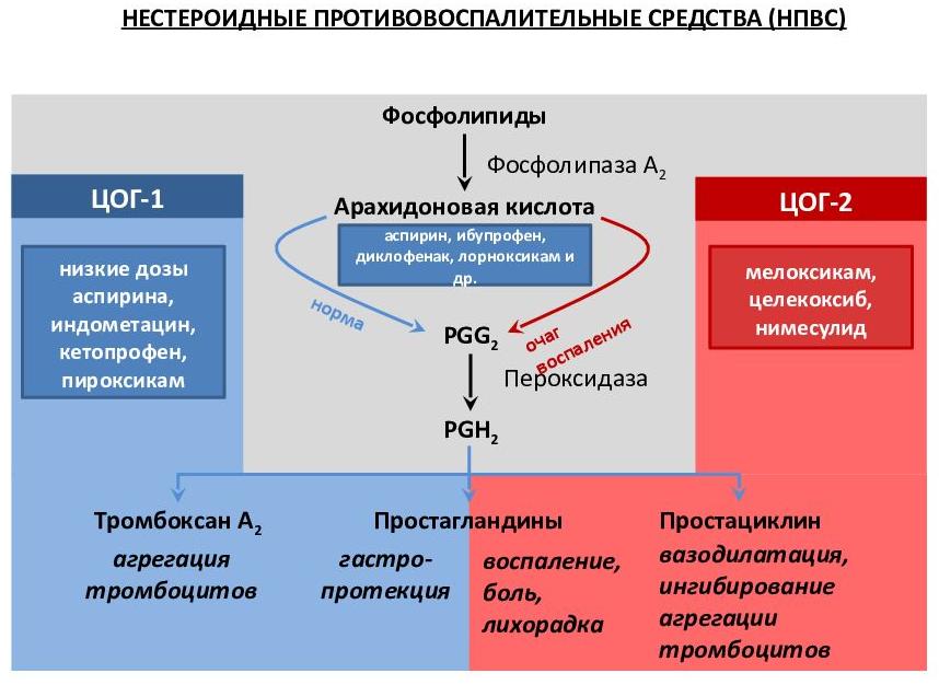 принцип работы разных видов НПВС