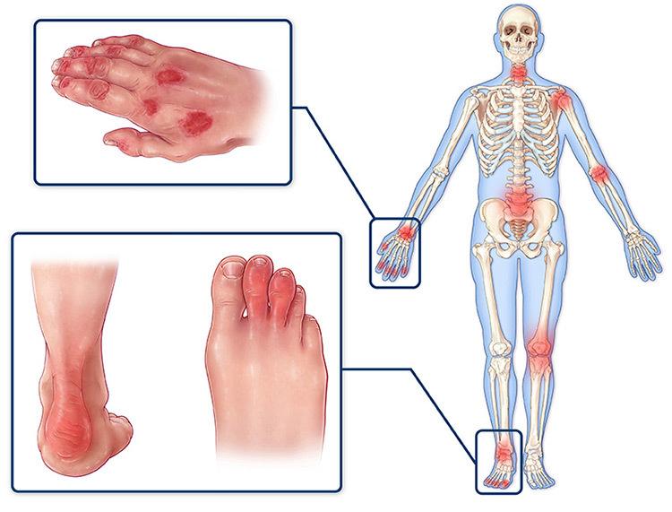 псориатический артрит симптомы