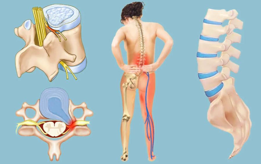 Межпозвоночная грыжа симптомы