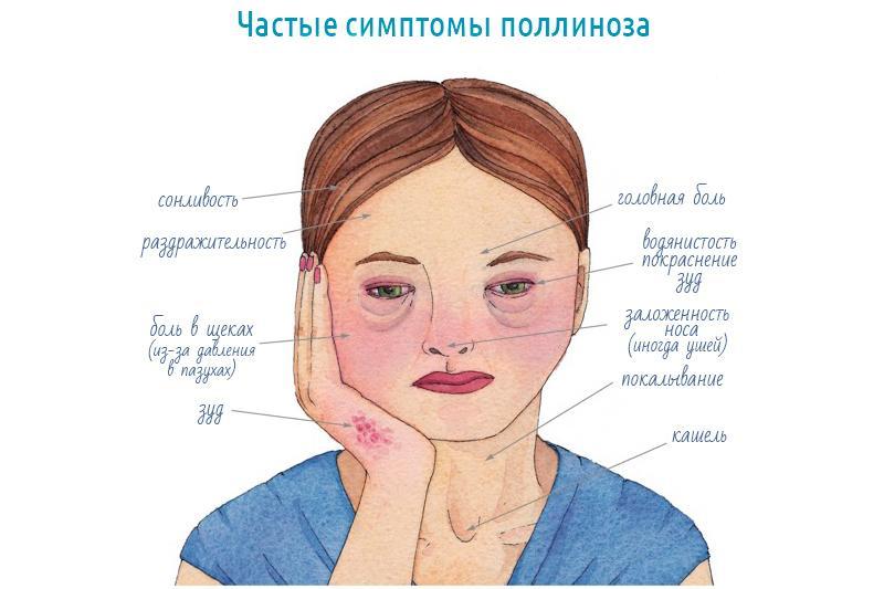 поллиноз носа симптомы