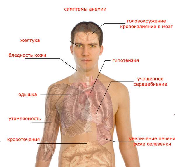анемия причины и симптомы