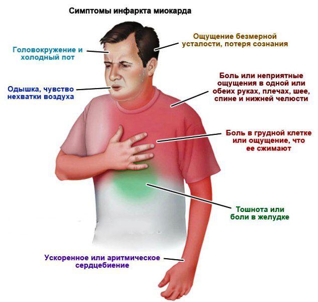 риск развития инфаркта миокарда