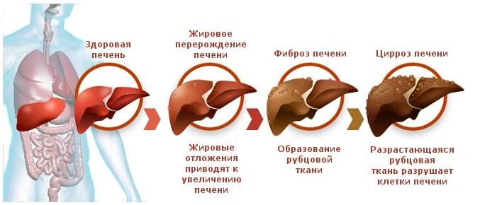 Стадии деградации печени схема