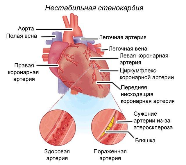причины нестабильной стенокардии