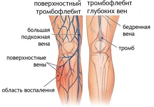 тромбофлебит глубоких и поверхностных вен