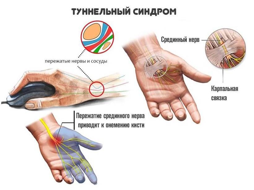 туннельный синдром лечение