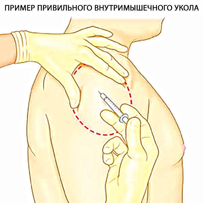 Внутримышечный укол в плечо