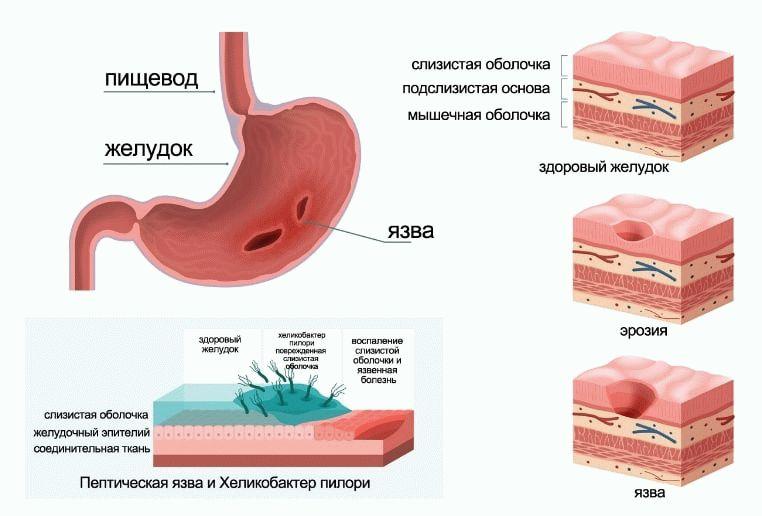 влияние НПВС на желудок