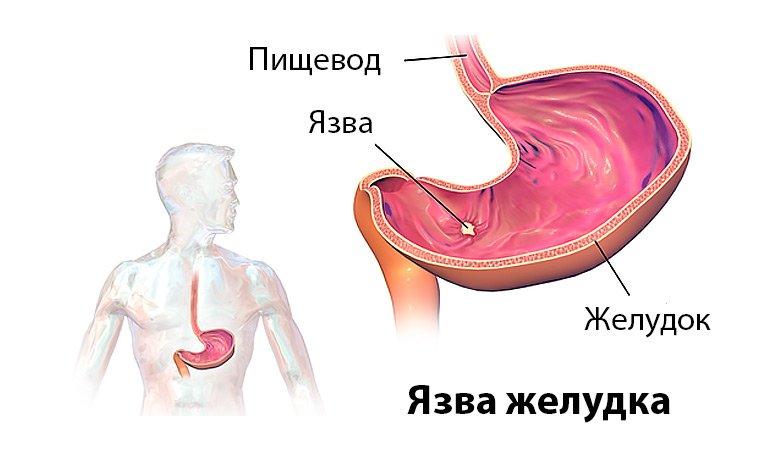 кровотечение из язвы желудка