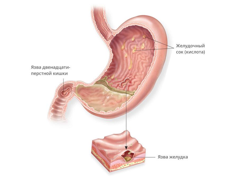 язва желудка и 12-перстной кишки причины и симтпомы