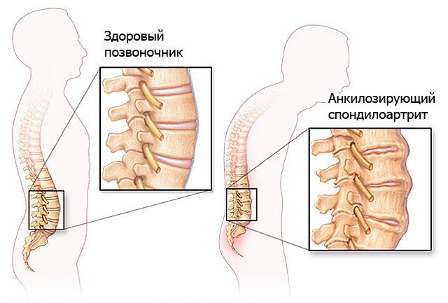 анкилозирующий спондилоартрит симптомы и лечение
