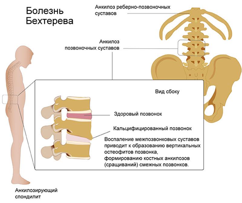 анкилозирующий спондилоартрит симтпомы и лечение