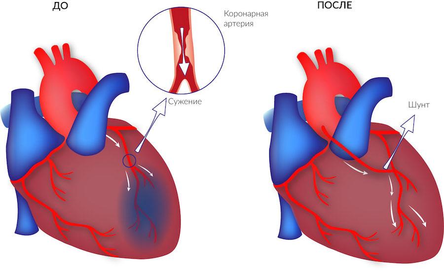 До и после аортокоронарного шунтирования
