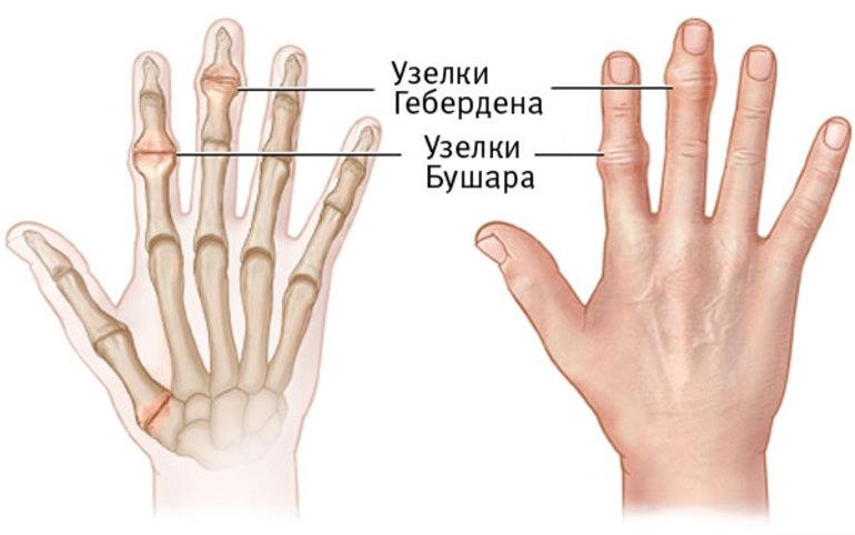 лечение артроза