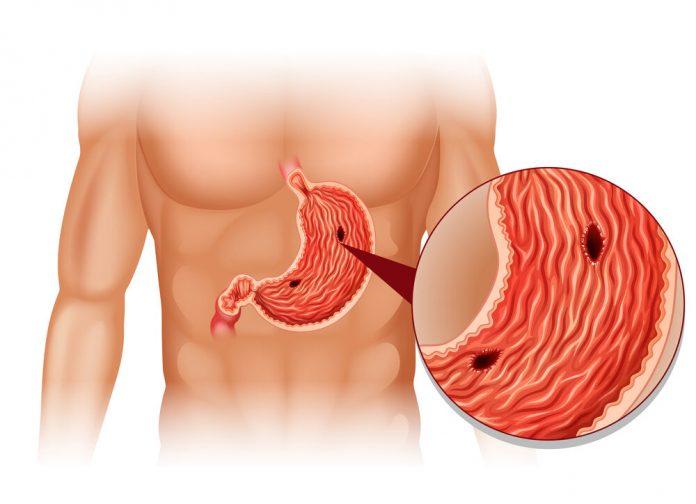 язвы и эрозии в желудке