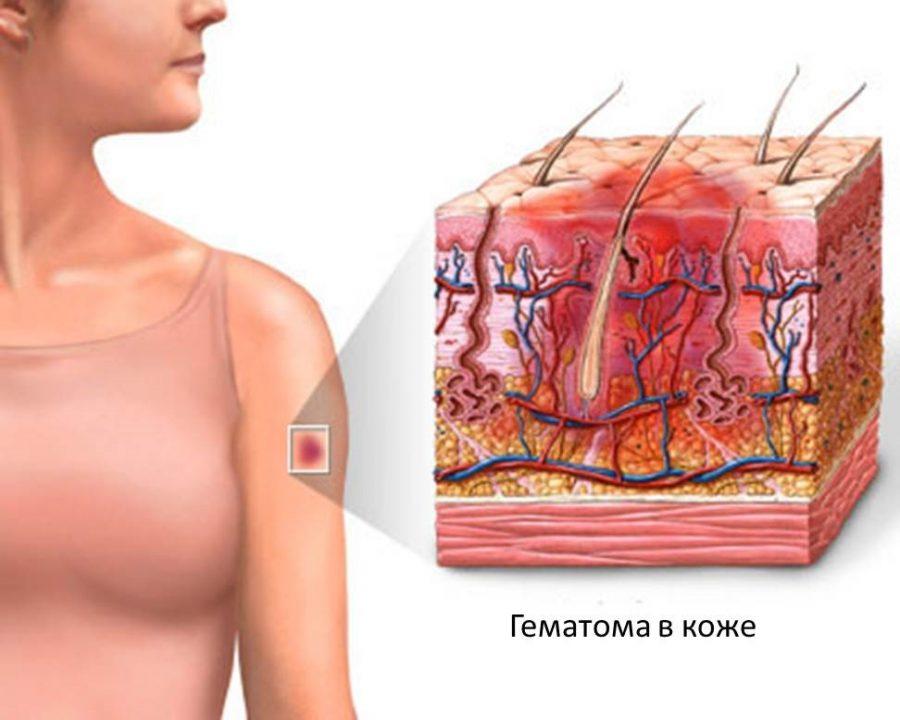 гематома в коже