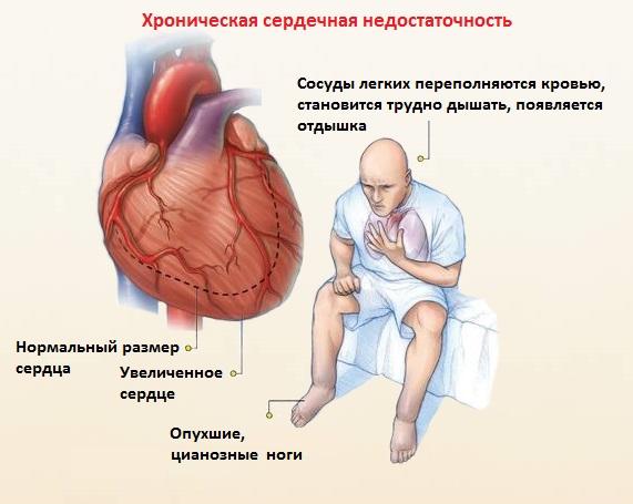 сердечная недостаточность симптомы