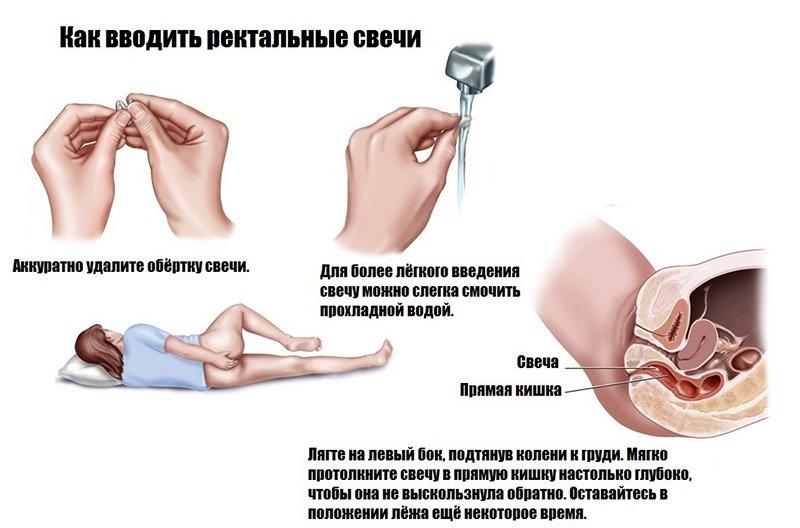 диклофенак суппозитории как вводить