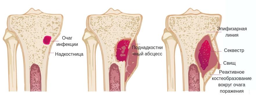 стадии остеомиелита бедренной кости