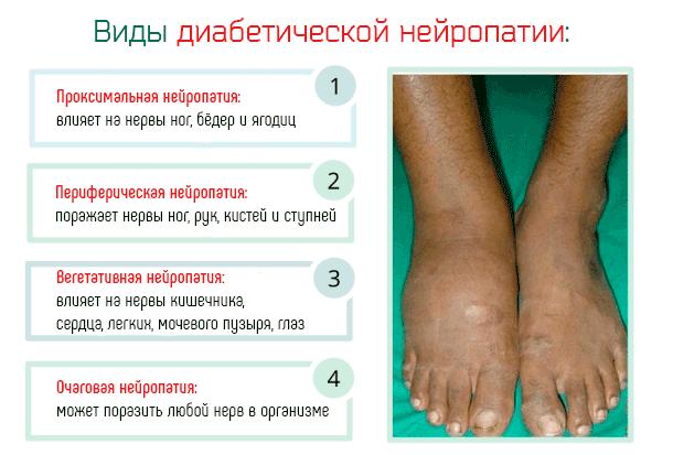 виды диабетической полинейропатии