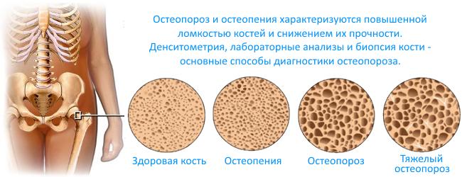 остеопороз диагностика и  стадии