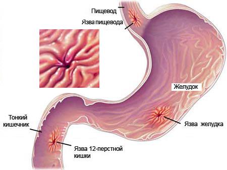 язвенная болезнь желудка, кишечника