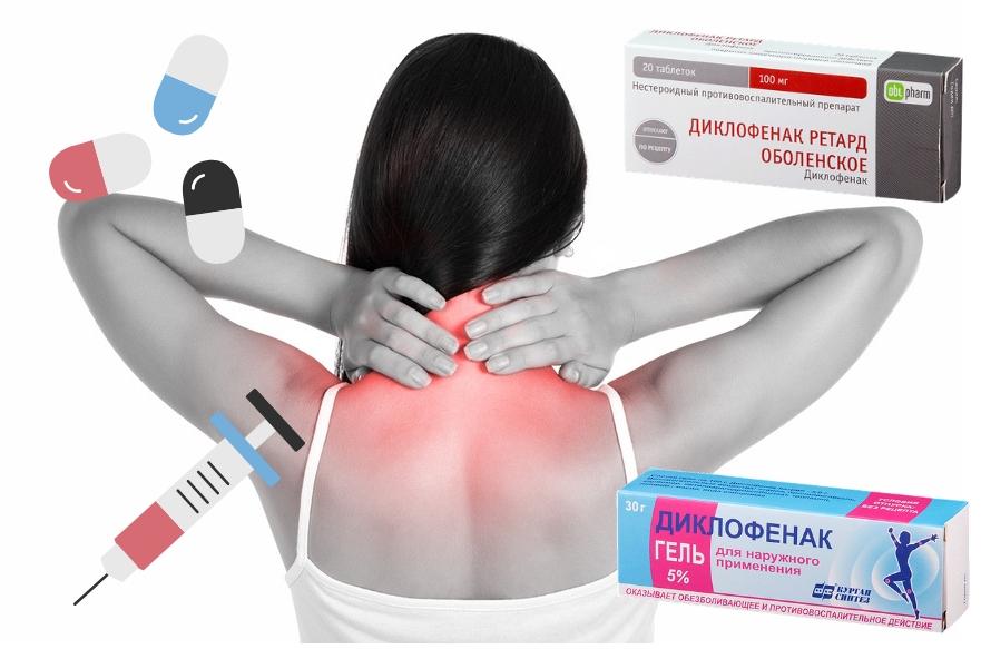 Диклофенак при боли в шее