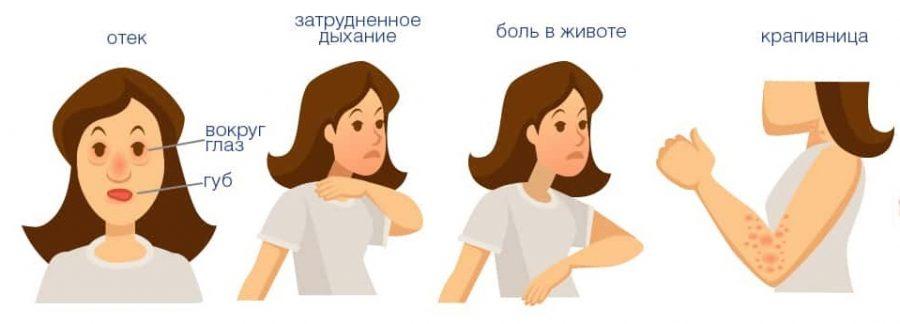 симптомы аллергии рисунок