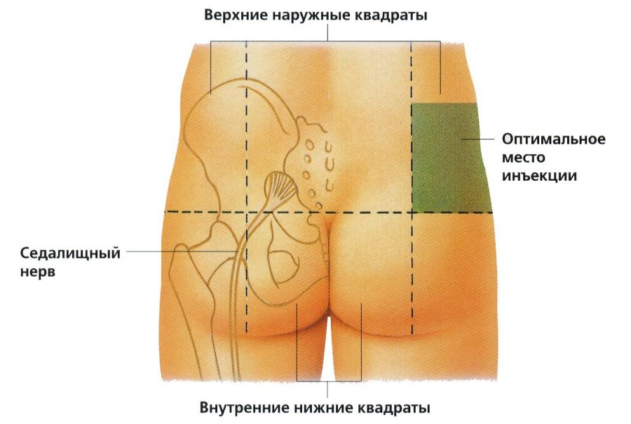 уколы диклофенака