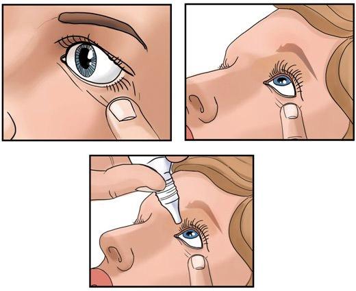 как закапать глаза рисунок