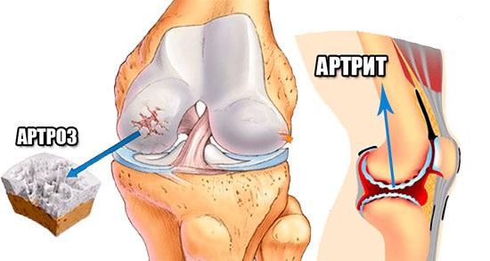 артрит и артроз схема