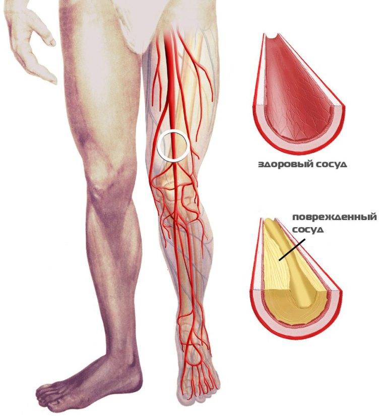 фото атеросклероз нижних конечностей