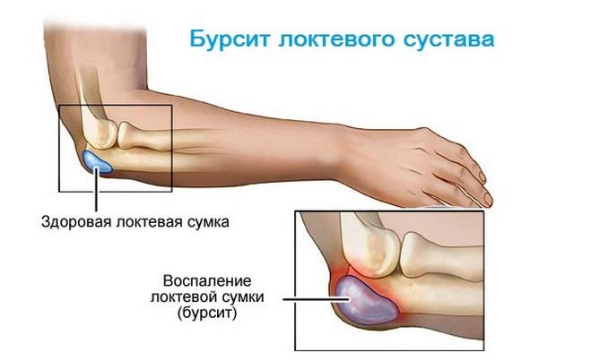 бурсит локиевого сустава