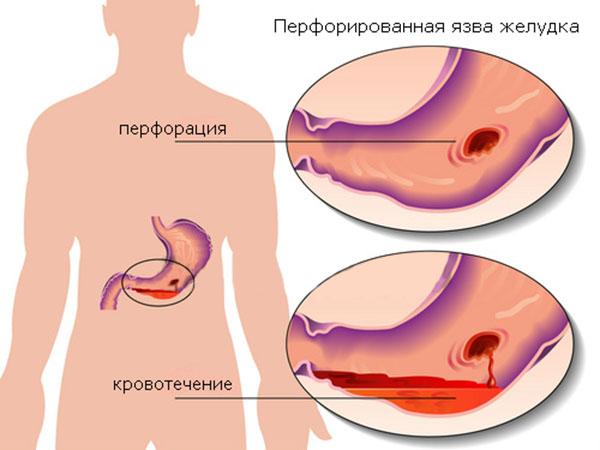 кровотечение при язвенной болезни желудка