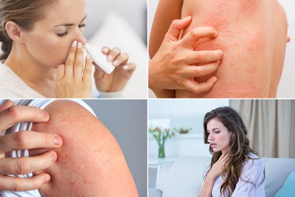 аллергия на диклофенак