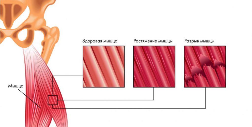 диклофенак при разрыве