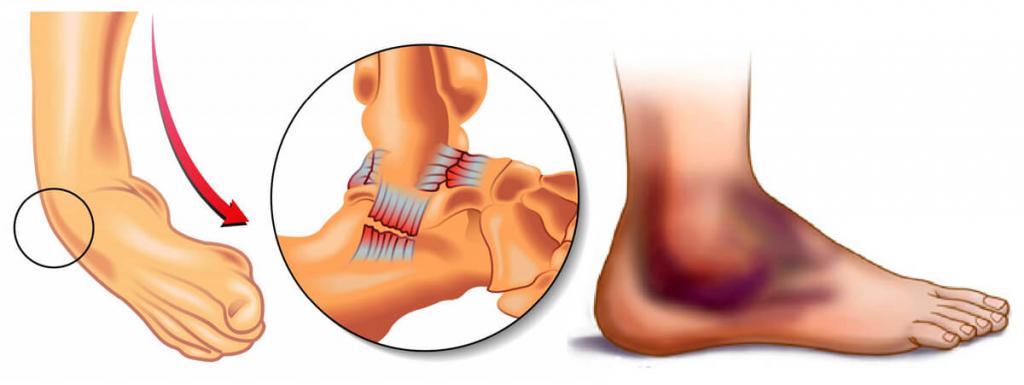 перелом симптомы и лечение